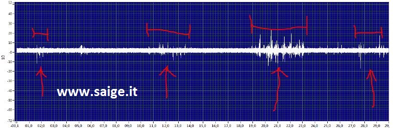 forma d'onda ultrasuoni tracking